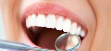 Отбеливание зубов – будьте осторожны!