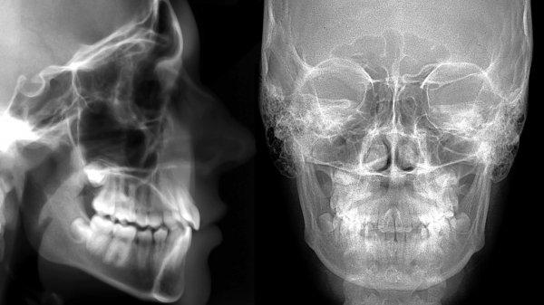 Вред рентгена