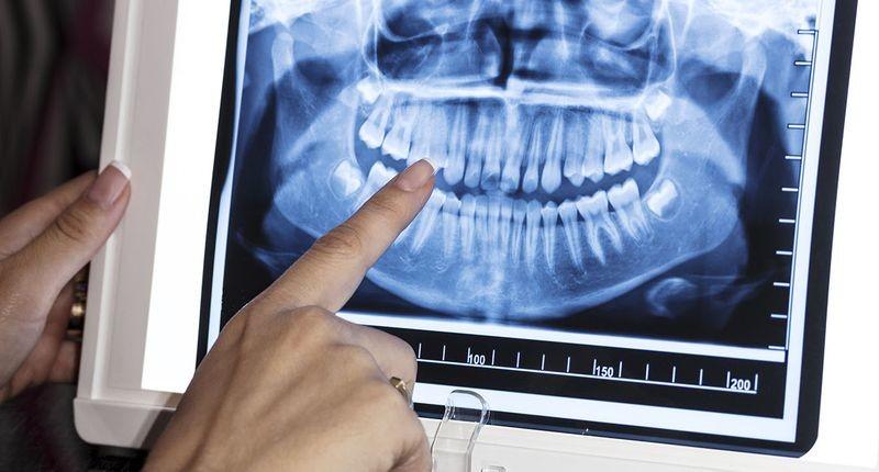 Доза излучения: опасен ли рентген